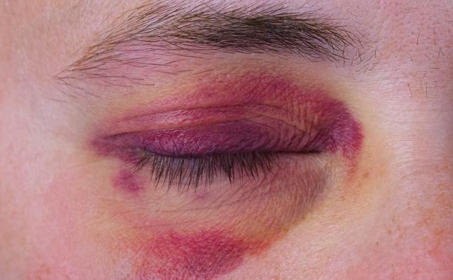 Studenten onderzoeken hoe je huiselijk geweld sneller herkent