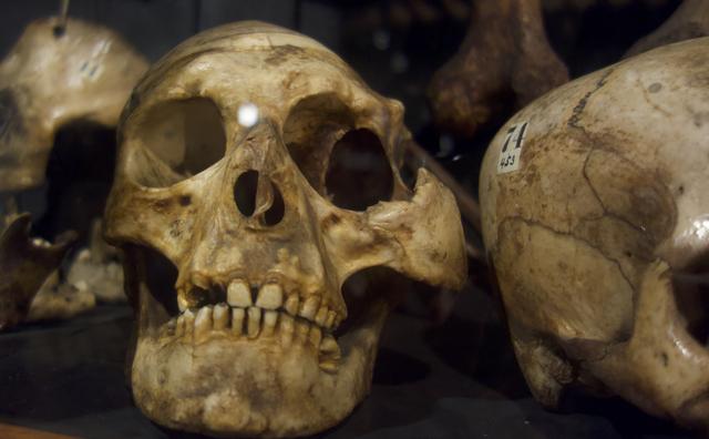 Alleen met een sterke maag: binnenkijken bij Museum Vrolik
